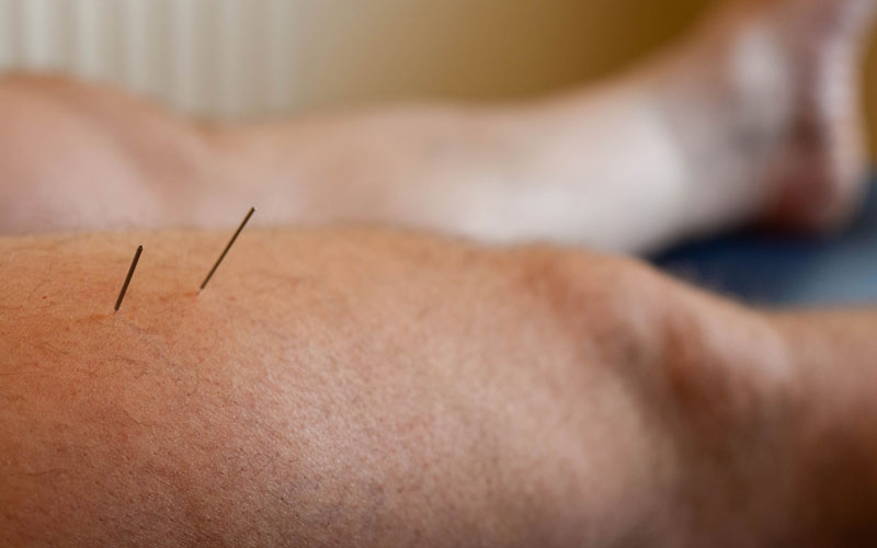 Electro-Acupuncture & Dry Needling, Co. Kerry