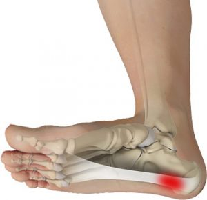 Plantar Fasciitis Overview – Foot Pain