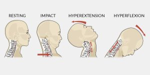 Whiplash Overview : Physiotherapist in Tralee