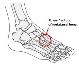 Stress Fractures – Common Running Injuries