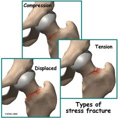 Stress Fracture of the Hip – Running Injuries