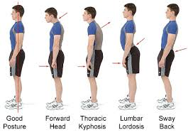 Physiotherapists in Dingle, Co.Kerry – Longterm Effects of Poor posture