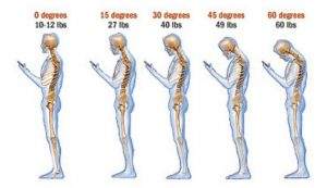 Effects of forward head posture