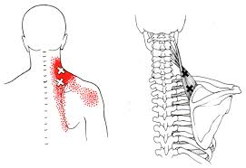 Physiotherapists in Kerry – Levator Scapula Muscle Related Neck pain.