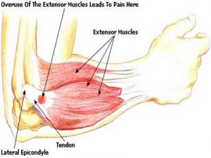 Tennis Elbow Misdiagnosis