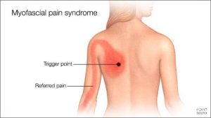 myofascial-pain-syndrome