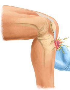 Osgood-Schlatter disease – Knee Pain in Adolescents