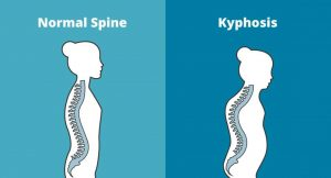 Scoliosis, Kyphosis, Lordosis : Back Pain