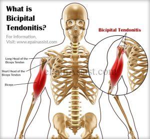 bicipital-tendonitis