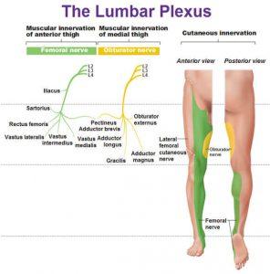 Lumbosacral Plexopathy