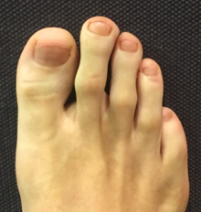 Morton's foot and B6 deficiency