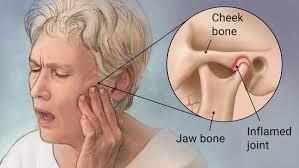 Temperomandibular Joint Disorder